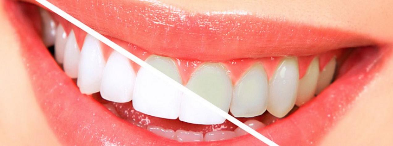 estetica dental web ok